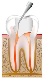 ④歯科セメントを流し込む