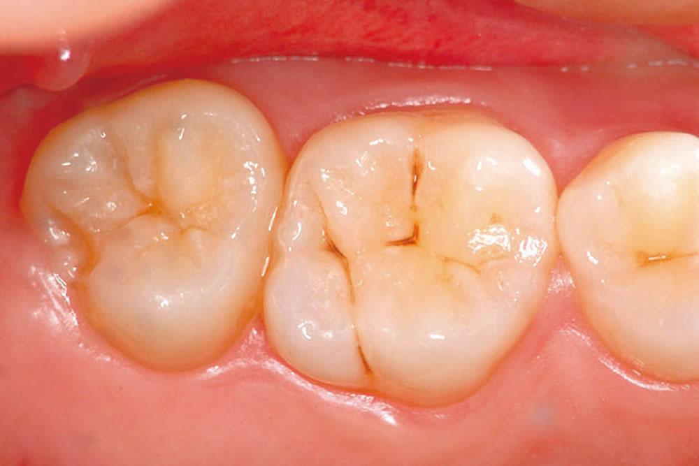 虫歯チェック
