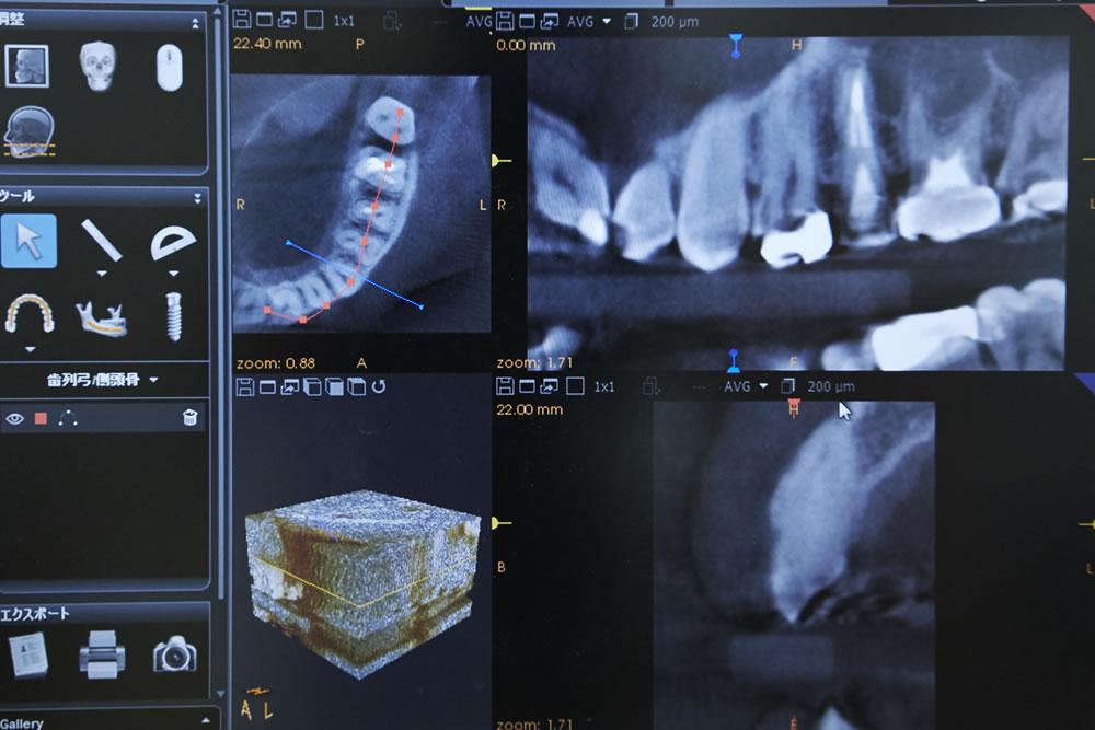 インプラント診断