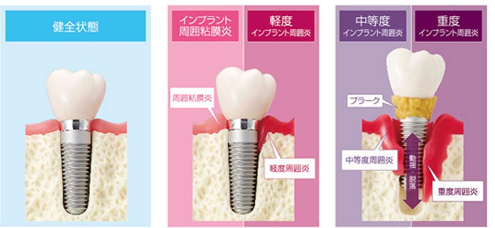 歯周病とインプラント