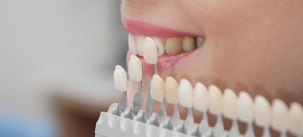審美歯科の基準