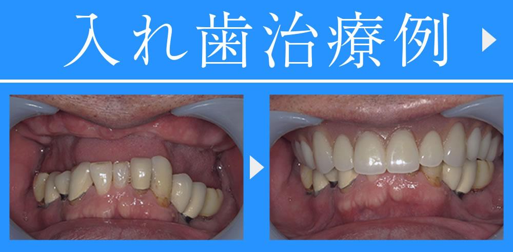 入れ歯治療例
