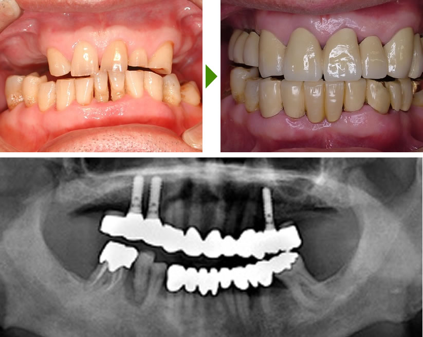 前歯のインプラント症例